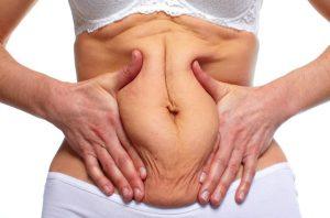 Как подтянуть живот после родов: упражнения при диастазе и не только