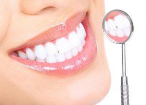 Топ-4 метода отбеливания зубов в домашних условиях